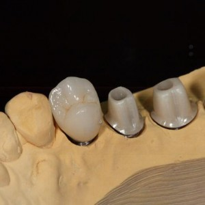 Dental Implant crown zirconia crowns Implant abutment