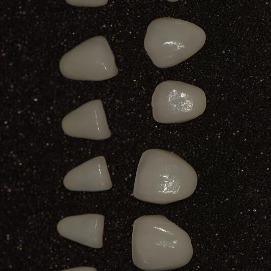 E-max veneers Featured Image
