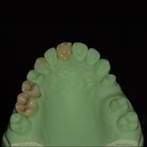 full contour zirconia full ceramic crown and bridge
