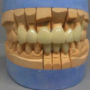 Matt Ppgi Dental Restorative -