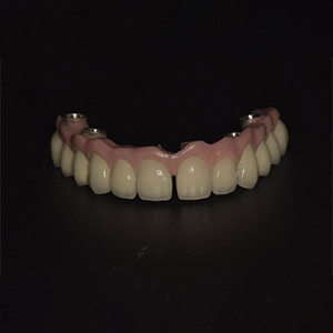 Individualized full arch implant bridge