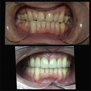 Natural Look Emax Crown&Veneer Work