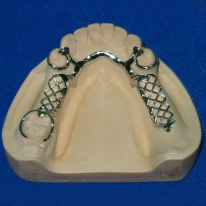 Black Iron Steel Coil The Dentistry -