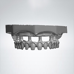 digital design of full arch implant work