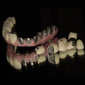CAD CAM Malo full arch implant bridge